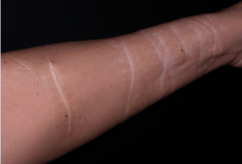 Scar removal harm self How Self